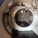 Hyperbaric Chambers for Sale